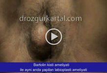 Bartolin Apsesi Ameliyatı ile Aynı Zamanda Yapılan Genital Estetik Ameliyatı Videosu